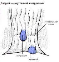 Лигирование геморроя (геморроидального узла ) латексными
