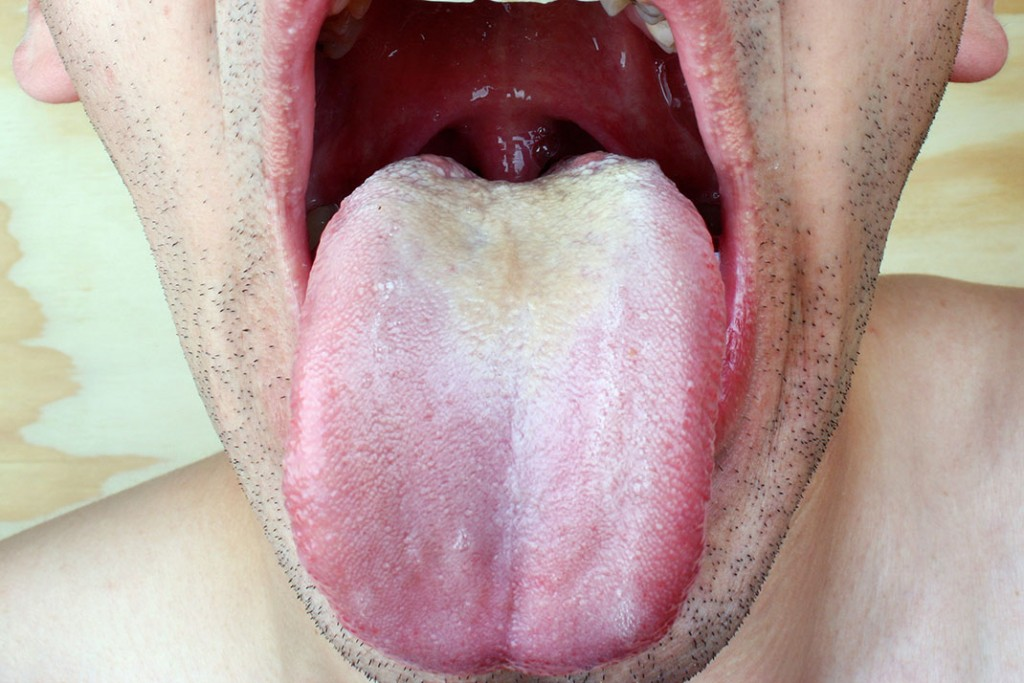 oral-thrush-man.jpg