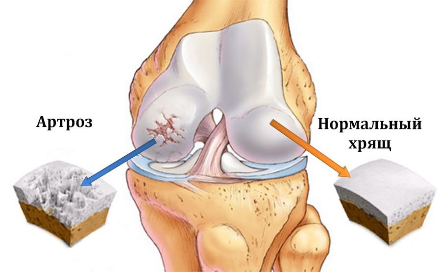 Лечение гомеопатией суставов лечебная ходьба при артрозе коленных суставов