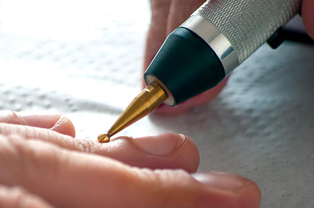 Крапивница - лечение гомеопатией, отзывы пациентов | Аконит-Гомеомед
